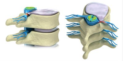 What is a herniated disc and what are your treatment options in Phoenix Arizona