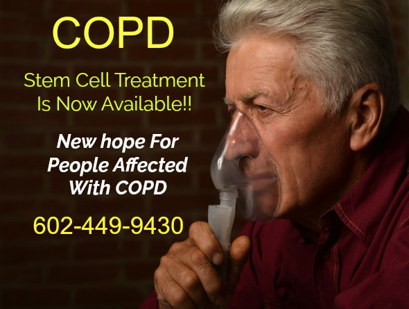 Stem Cell Therapy Brings New Hope For COPD Victims.