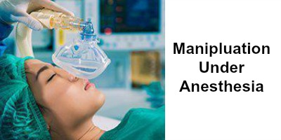 Manipulation Under Anesthesia
