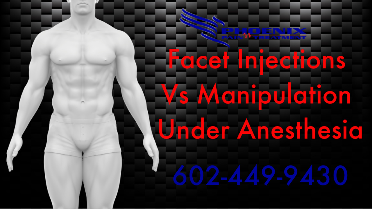 Facet Injections Vs Facet Manipulation Under Anesthesia